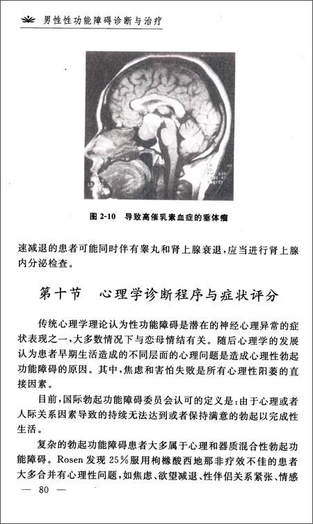 男性性功能障碍诊断与治疗