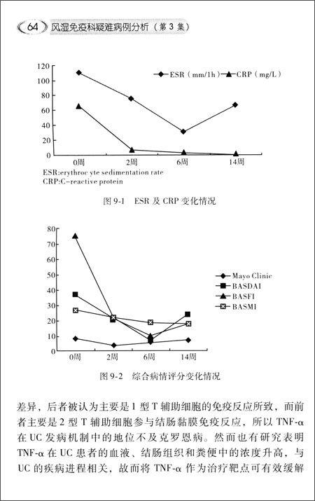 风湿免疫科疑难病例分析:协和医生临床思维例释