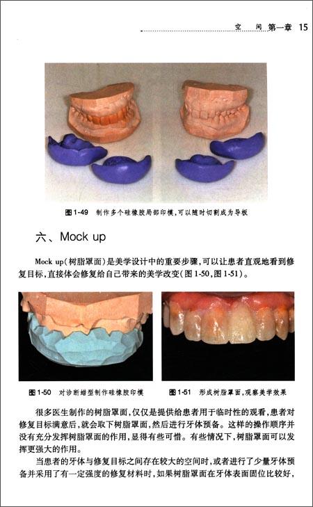 口腔美学修复实用教程:美学修复牙体预备
