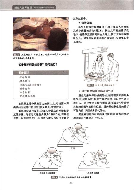 新生儿复苏教程