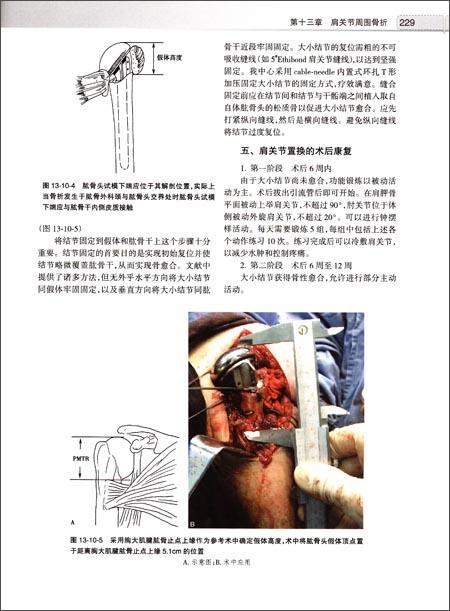 (二)关节囊及韧带结构