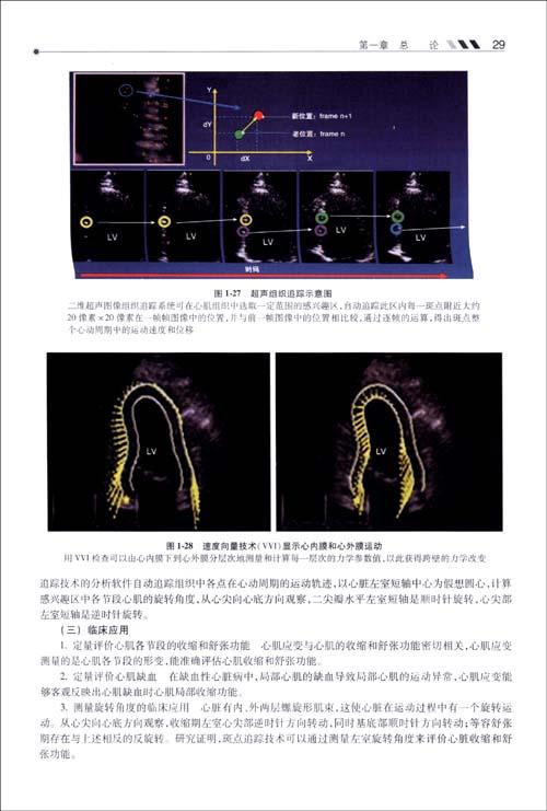 医学超声影像学