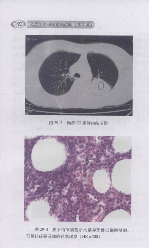 风湿免疫科疑难病诊断:协和医生临床思维例释