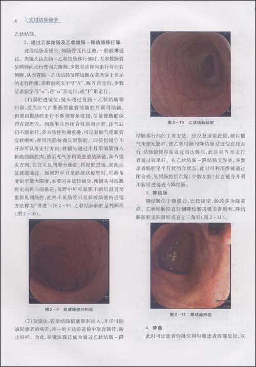 实用结肠镜学