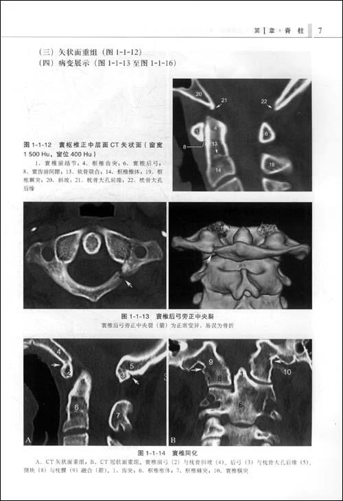 脊柱四肢影像图解:正常解剖-常见变异-常见病变