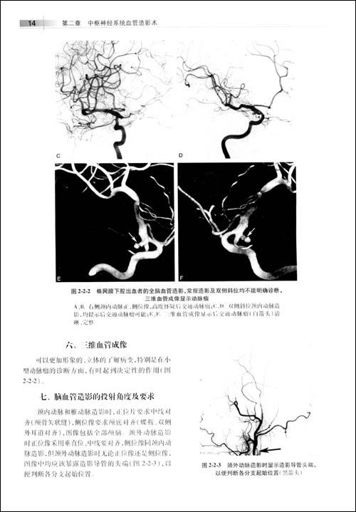 神经系统血管性疾病DSA诊断学