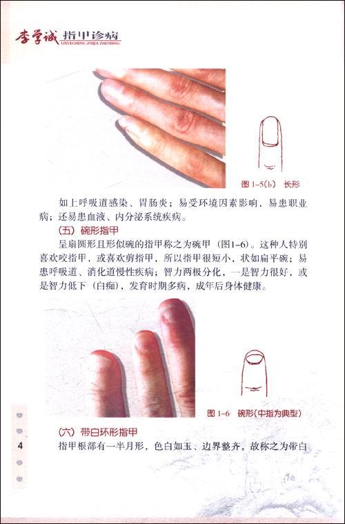 常见指甲外形异常 -  中国书画 - 中国书画