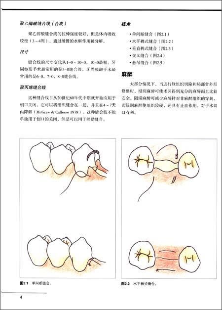 实用牙周整形手术