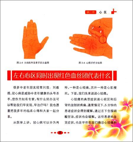 刘剑锋常见病手诊手疗法