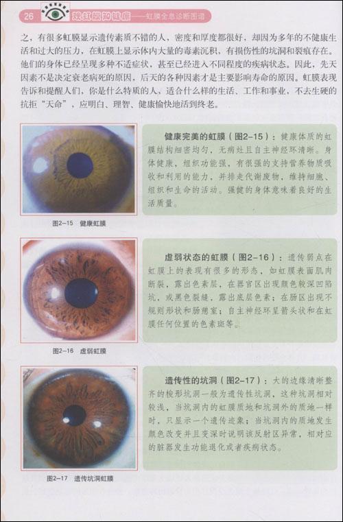 观虹膜知健康:虹膜全息诊断图谱