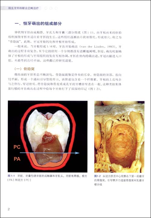 四,错位牙胚与周围解剖结构的关系