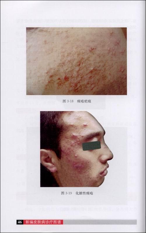 男性阴虱病症状图片