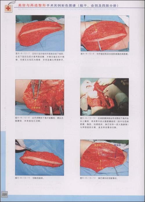 美容与再造整形手术实例彩色图谱