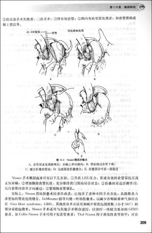 小汤2问候第一声部曲谱-(二)体位   根据不同病情采取不同体位.一般麻醉清醒前平卧,头侧